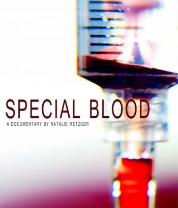 Prosebna krv